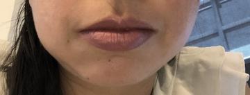 Iris Lipgloss