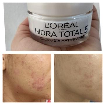 Foto de L'Oréal Paris Cuidado básico piel mixta a grasa