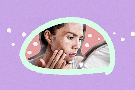 ¿Cuáles son las principales causas de las manchas en la piel y cómo eliminarlas?