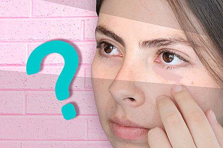 Ojeras: lo que realmente las causa y cómo lidiar con ellas