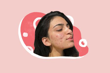 Quiz: Contesta estas preguntas y te diremos qué puede estar causando el acné en tu rostro