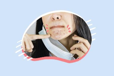 """¿Cómo tratar el """"maskné""""?: Prevención de los problemas de la piel al usar cubrebocas"""
