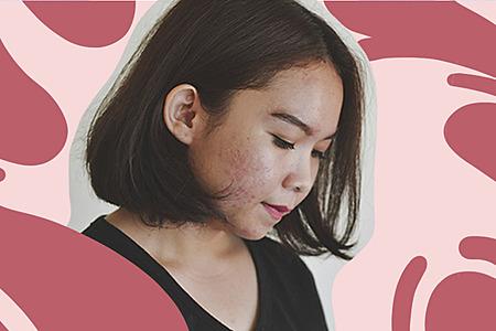 Enrojecimiento en la piel: ¿Qué lo causa, cómo evitarlo y calmarlo?